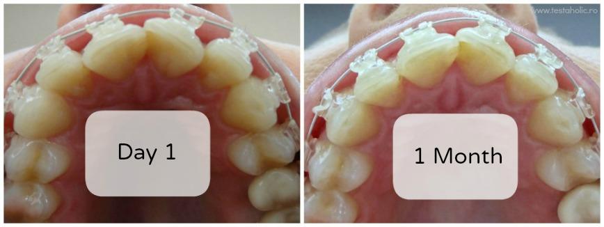 aparat-dentar-safir-transparent-inainte-dupa-poze