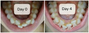 radience-plus-braces-saphire-transparent-before