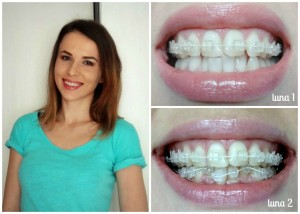 aparat-dentar-safir-transparent-poze-inainte-dupa