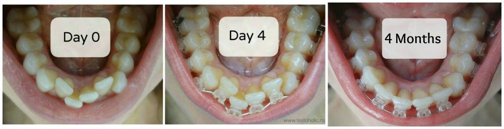 aparat-dentar-invizibil-safir-poze-inainte-dupa