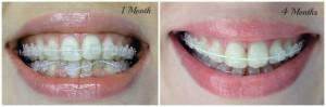 inainte-dupa-aparat-dentar-safir-transparent