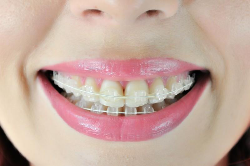 aparat-dentar-safir-simetrie-ocluzie